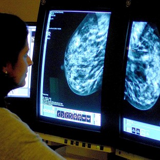 Official guidelines advise women to carry out breast self-examinations each month