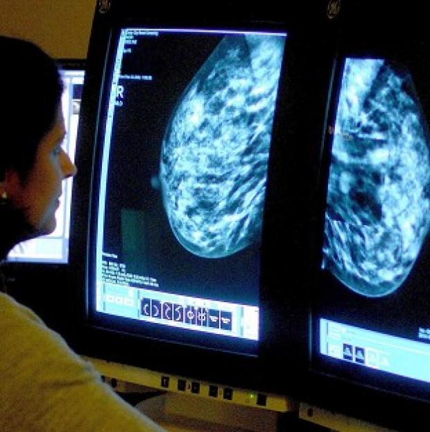 Salisbury Journal: Some 36% of breast cancer patients will die from their disease by 2020, down from 61% in 1992, research suggests