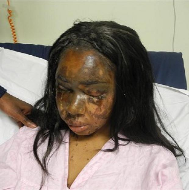 Salisbury Journal: Naomi Oni, who was scarred for life in an acid attack, has accused police of incompetence over the investigation (Met Police)