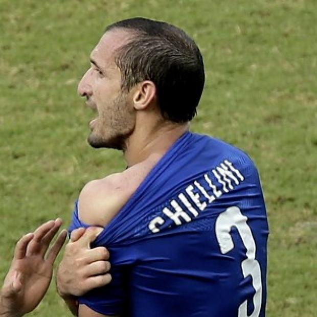 Salisbury Journal: Italy's Giorgio Chiellini displays his shoulder showing apparent teeth marks after colliding with the mouth of Uruguay's Luis Suarez (AP)